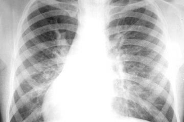COPD Reviews